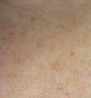 EFA pigmentation