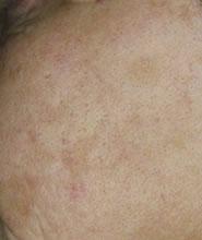 premature ageing skin