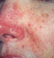 typical rosacea